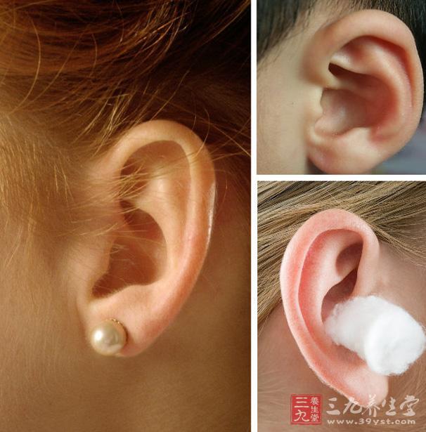 先天性耳前瘘管 先天性耳前瘘管有哪些表现