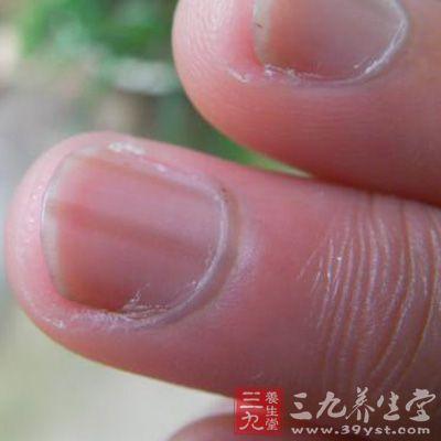 大拇指指甲上有竖纹怎么回事 8