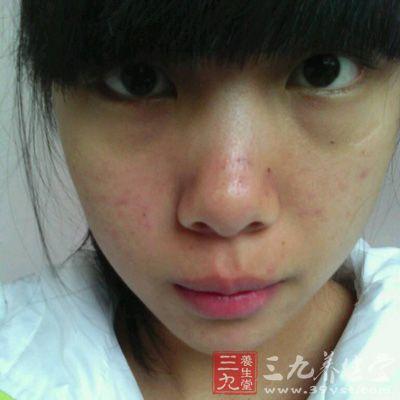 脸上长痘痘 如何让脸上痘痘消失(7)