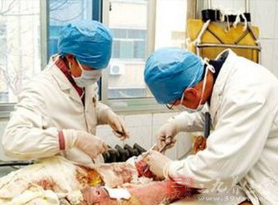 女大学生吃火锅全身被烧伤