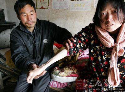 中国癌症现状调查显示死亡人数占全球25%