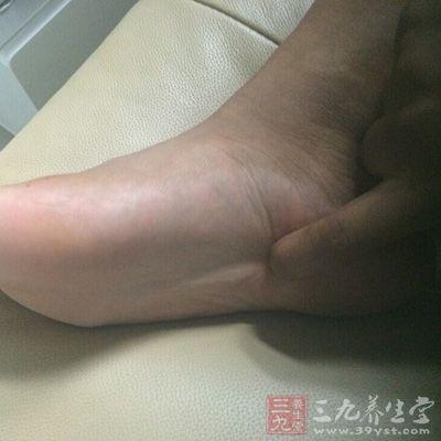 脚后跟疼是怎么回事 脚后跟疼的治疗方法(2)