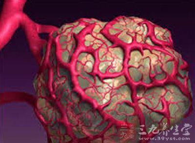 血管样的网状结构,从而促进了肿瘤细胞的渗透和转移