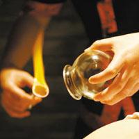 火罐的种类
