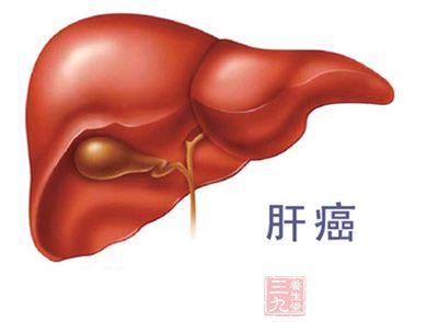 肝癌的症状_肝癌的早期症状以及如何治疗 - 三九养生堂