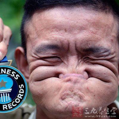 """川省成都市,""""烂脸王""""汤术全表演嘴巴吃鼻子,并展示今年3月在意图片"""