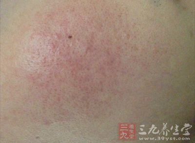 【寻医问药】红血丝皮肤的保养 红血丝皮肤的保养方法