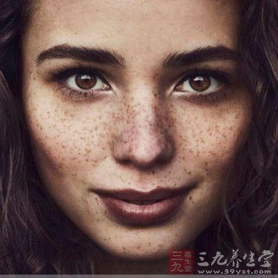 脸上长斑是什么原因 脸惹了谁染上斑(3)