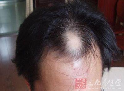 治脱发偏方 让你没有脱发的烦恼