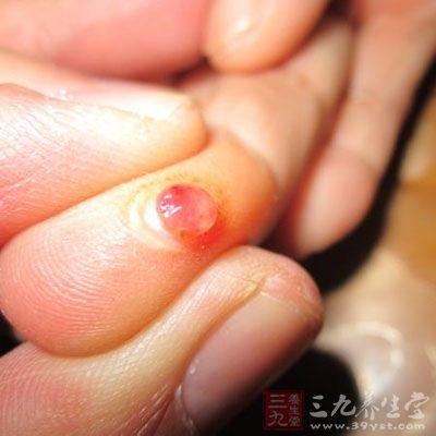 化脓性指头炎