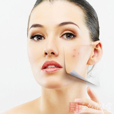 如果你的痘痘出现在右边脸颊上,说明近期肠胃功能有所下降