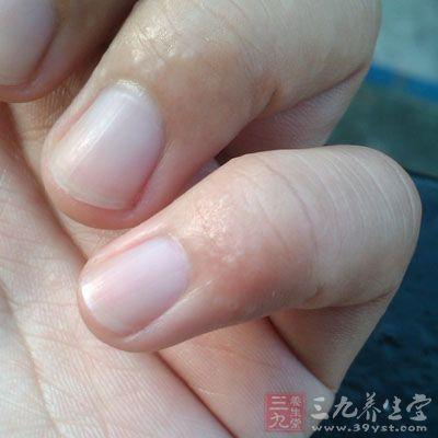 损害为红斑、丘疹、水皰、渗出、结痂等