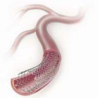 降脂灵方治疗高脂血症