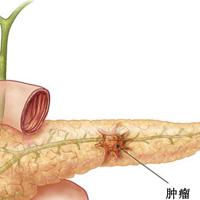 青黄金菊方治疗胰腺癌