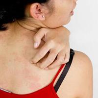 五虎丹治疗皮肤癌