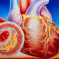动脉硬化性闭塞症