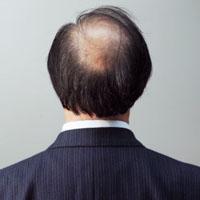 脱发怎么办 吃这些治疗脱发不是梦