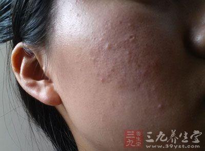 青春痘发炎后会破坏皮肤的表皮结构