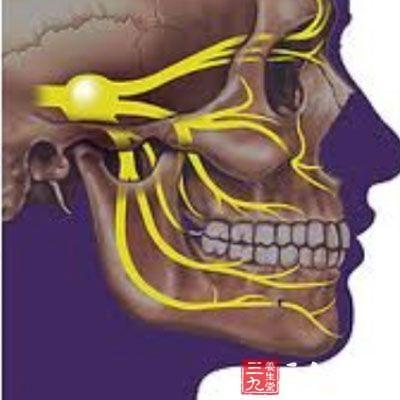 三叉神经痛的原因 专业解释三叉神经痛的形成