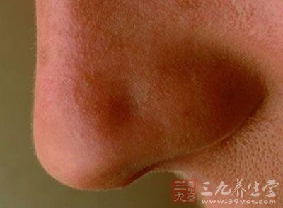 鼻息肉患者吃什么好