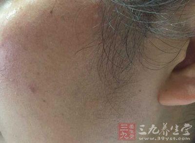 通过痘痘和面部的一些部位变化