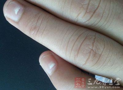 指甲有白点