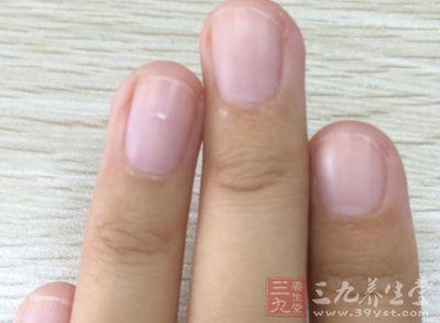 湿疹,皮炎,癣,蚊虫叮咬   频繁美甲会伤害指甲,会使指甲基质失去保护