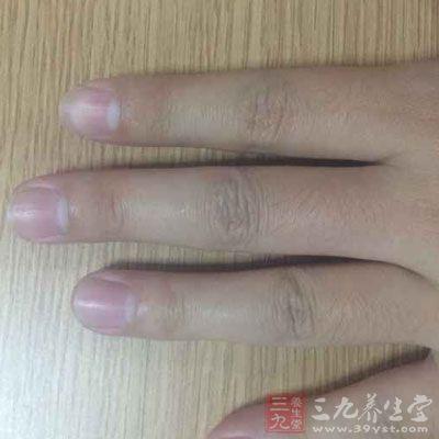 半月痕就是指在指甲下方五分之一处出现的一条白色弧形痕迹图片