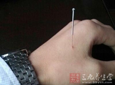 所谓针灸疗法就是利用针刺来刺激身体上的一些穴位,中医们通常也把它叫做放血疗法