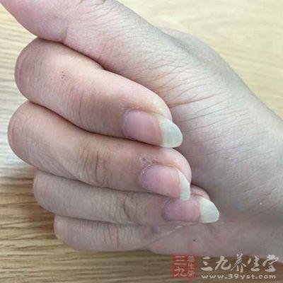 长指甲容易导致皮肤病
