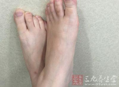 脚脱皮是怎么回事 7种你不知道的脚部保养