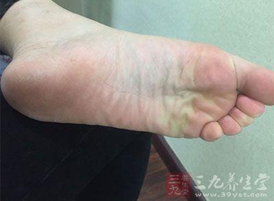 脚下旋纹是指脚心纹路呈现漩涡型有旋转的趋势