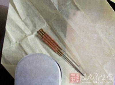 针灸的作用 小小银针竟有如此神奇的作用