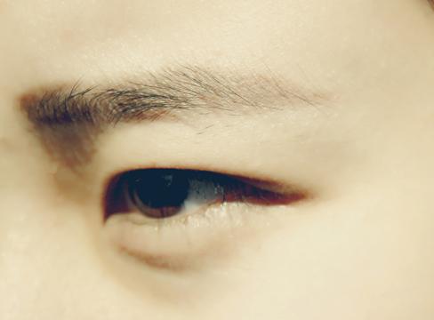 高度近视六旬网脱患者双眼手术7次
