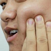 牙周炎的治疗偏方 牙周炎吃什么好