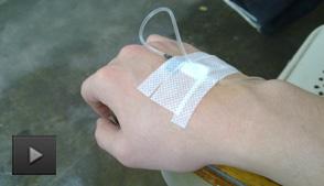 食管癌手术前后有什么注意事项