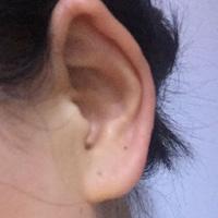 外耳道炎的疾病查询