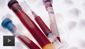 什么情况下需要输血