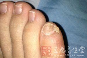 惊 脚趾有这特征祖先竟是希腊人(图)
