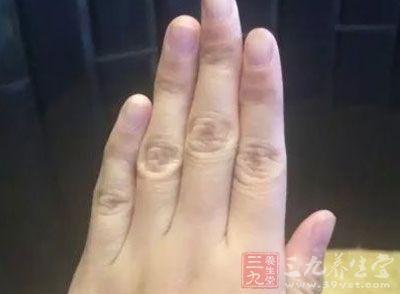 手癣是由有害真菌感染手足部位而出现的皮肤损害