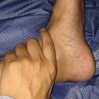 上下肢伤筋偏方