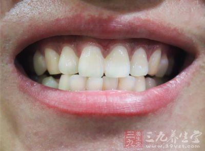 唾液可抑制病毒与细菌孳生 预防蛀牙发生