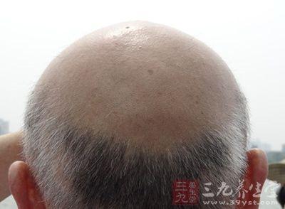 脱发原因及治疗 取穴施灸效果显著