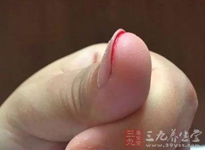 用拇指按压手臂部的外关