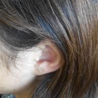 治疗耳鸣的简单偏方