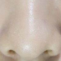 急性鼻窦炎药膳方