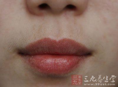 小心嘴角这种泡引发毒疮(1)
