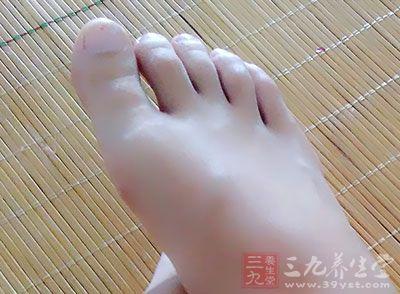 大敦穴位于大脚趾内侧的趾甲缝旁边