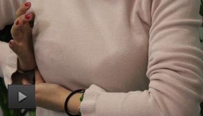 乳头内陷矫正手术会损伤乳管 影响哺乳吗