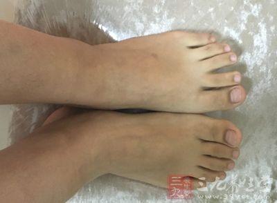 引起灰指甲的原因_【图】有效缓解脚趾甲变厚 - 图老师